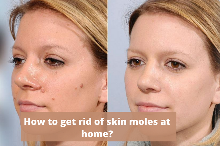 How to get rid of skin moles at home?